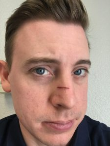 a picture of a white guy with a small cut on his nose